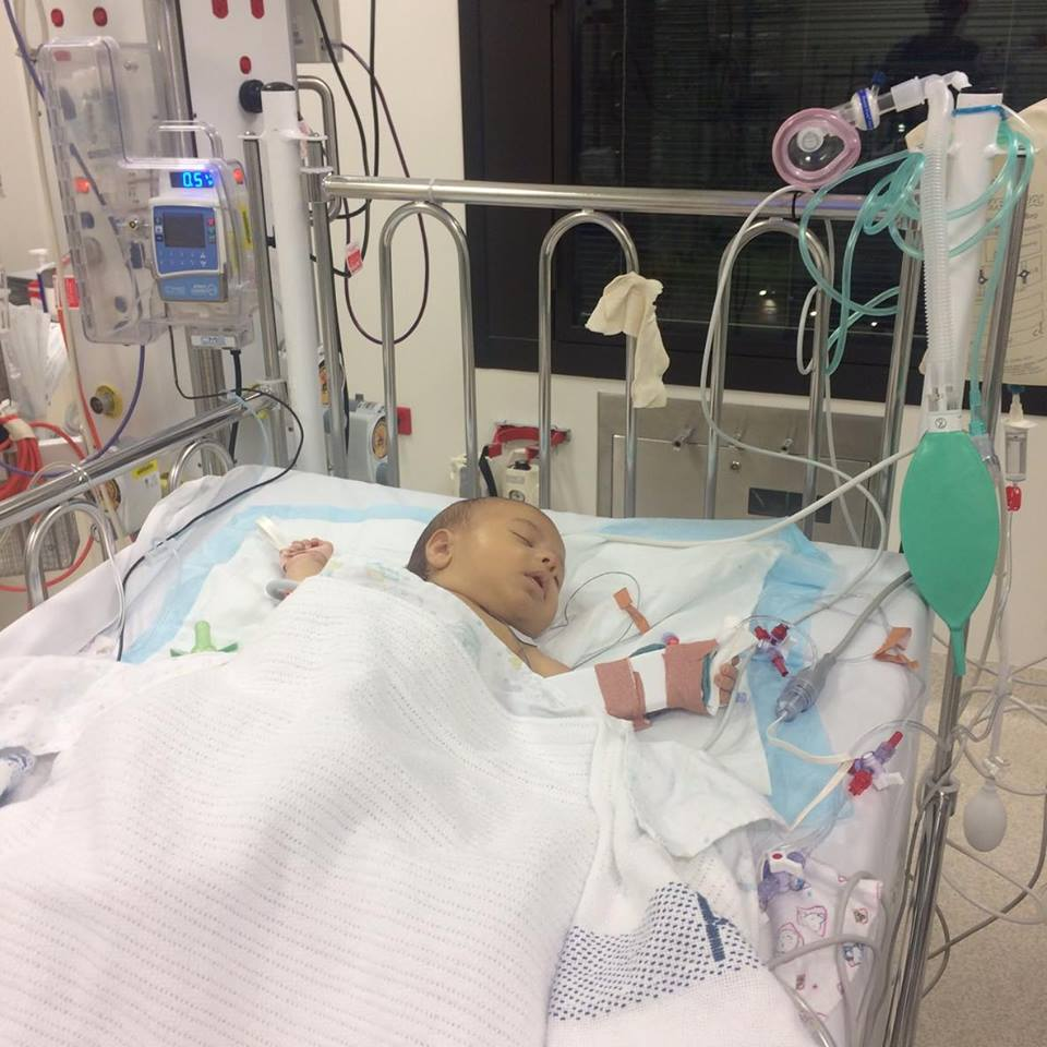 Leo In Picu After The Failed Kasai Operation ( Diagnosed Too Late We  Suspect)