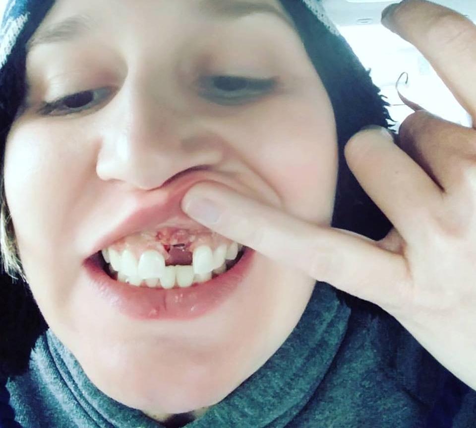 Fundraiser By Joy Nix : Help Joy Get A Tooth