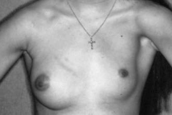 Breast poland syndrome