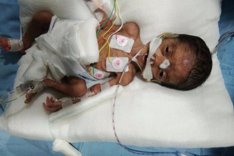 fundraiser by venkata vamsee krishna ragi premature baby medical fund