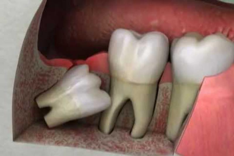 Удаление зуба мудрости с разрезанием десны