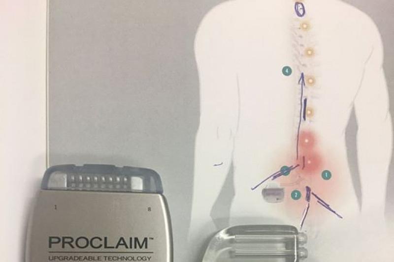 Spinal cord stimulator orgasm