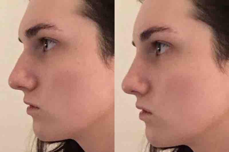 Facial feminization surgery blog