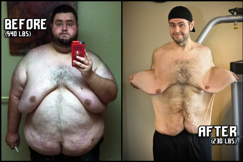 Man Loses 300 Lbs Has To Have Surgery To Remove 13 Lbs Of Extra