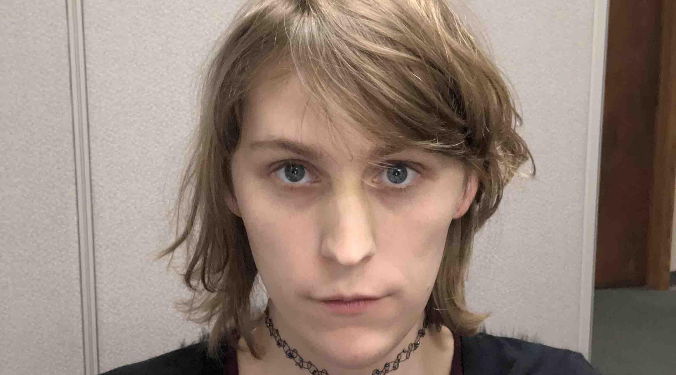 Boy receives facial feminization pic 661