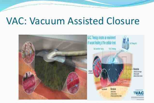 fundraiser by april gurrola wound vac coverage