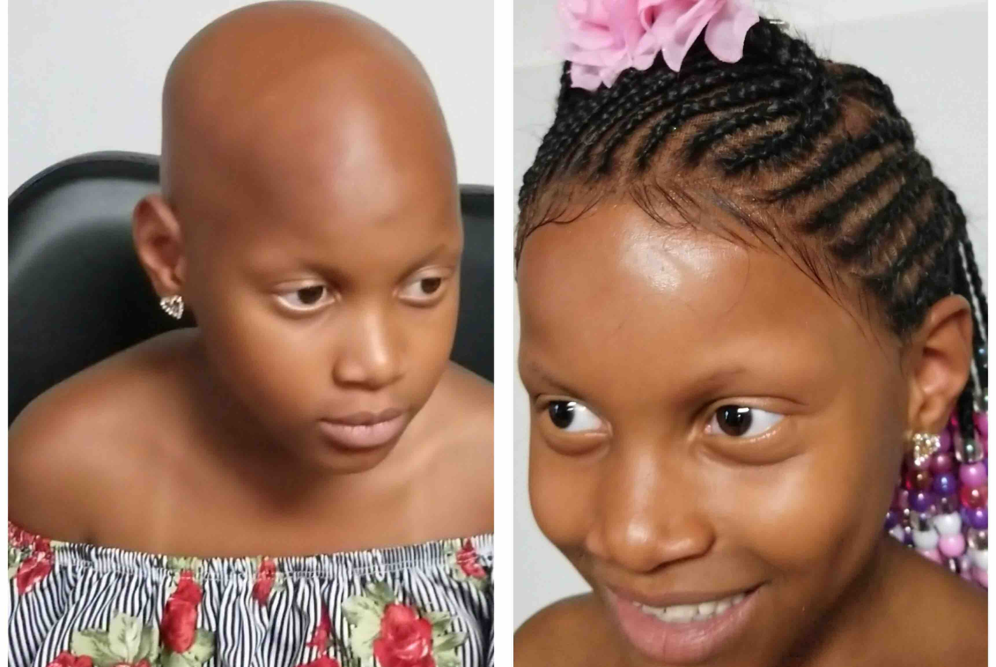 Fundraiser By Quilla Runway Hair Wigs For Children With