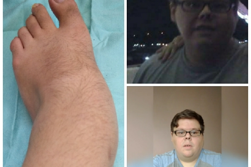 Money for Foot surgery and recovery GoFundME Booster CrowdFunding Campaign