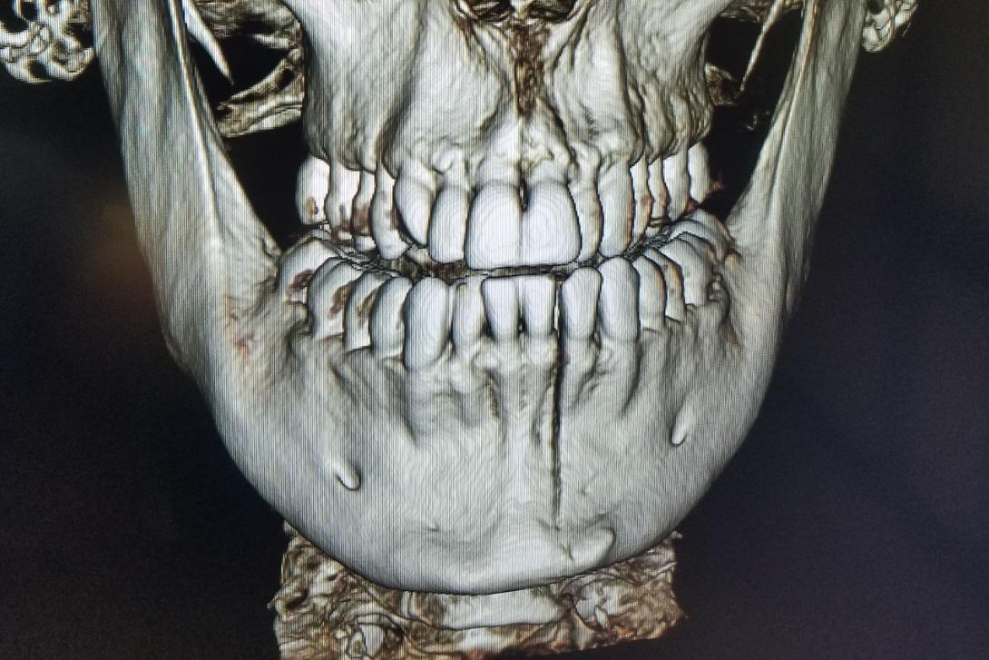 Fundraiser by David Goldman : Help David Fix His Jaw