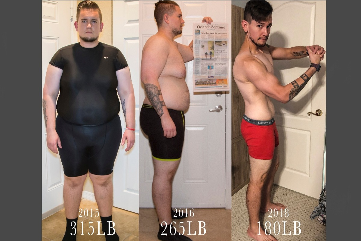 Fundraiser By Chad Clegg Weight Loss Surgery Before During