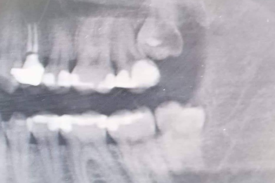 Fundraiser by Chivahn Wilkens : Get Chivahn's Janky Wisdom Teeth Out