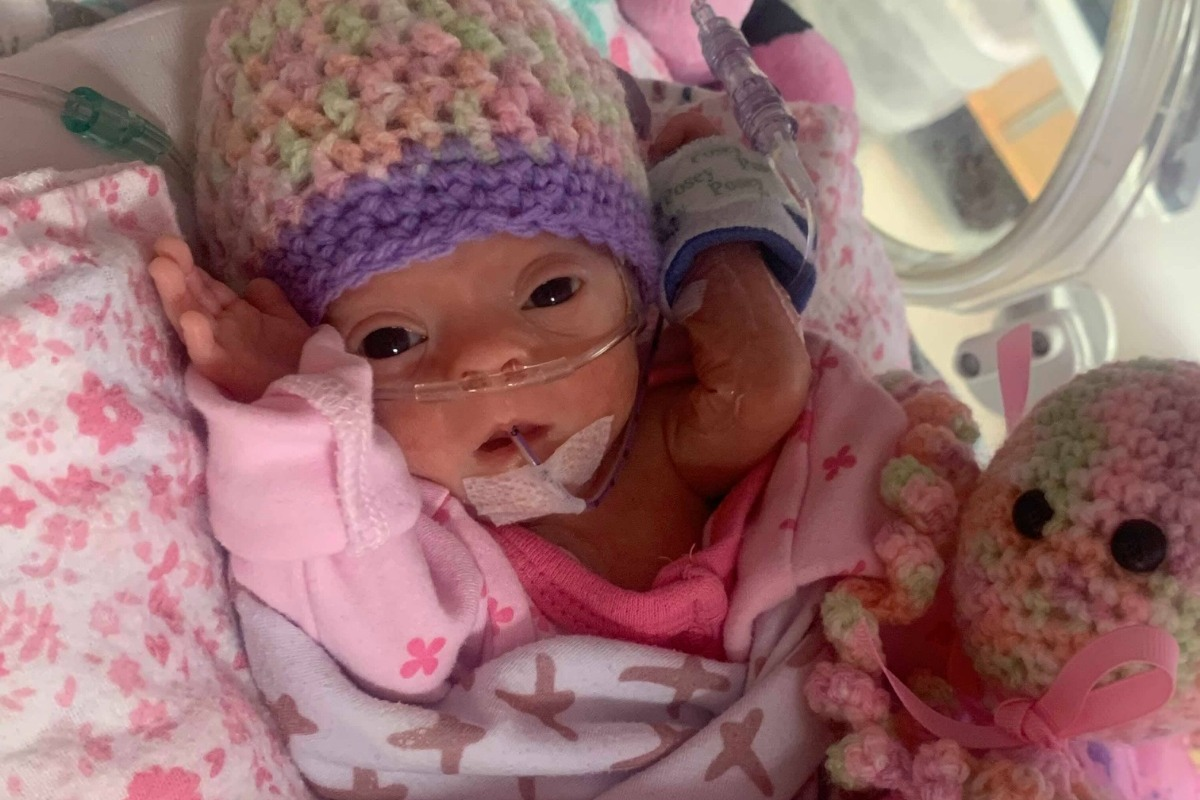 Fundraiser by Brandon St. Clair : Support for Baby Cinder ...