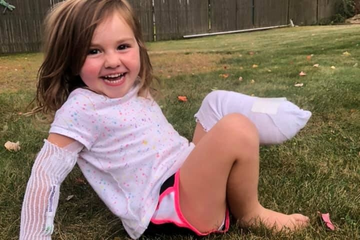 """Mom Says 3-Year-Old Daughter Is Doing """"Far Better Than All the Adults in Her Life' After Lawnmower Accident Takes Her Leg"""
